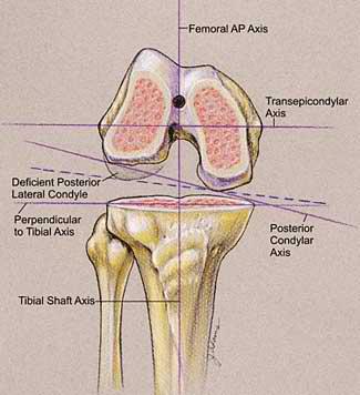 arthrofibrosis-1